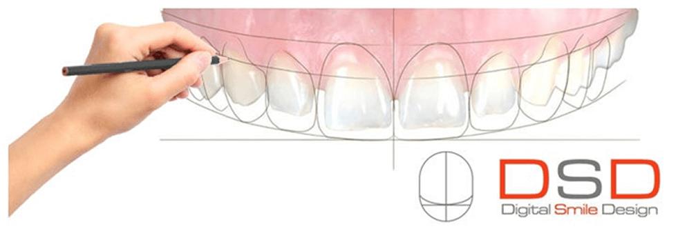 Dsd Digital Smile Design Newbury Dentist Thatcham Hungerford Berkshire